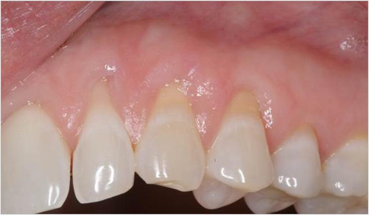 retração gengival cárie na raiz do dente
