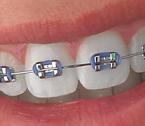 borrachas de aparelho dentário