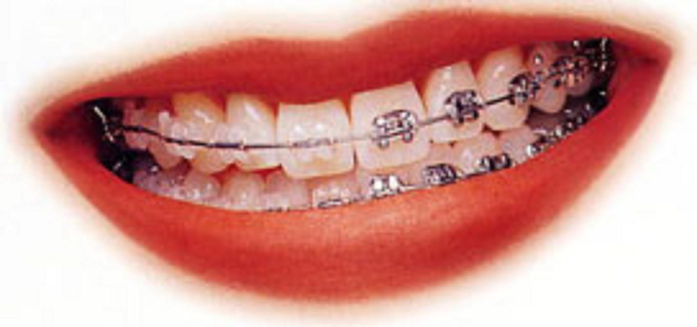 aparelho dentário fixo