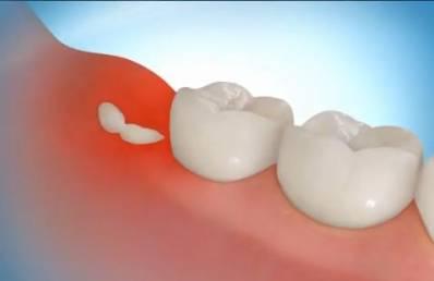 dente siso nascendo dor de dente