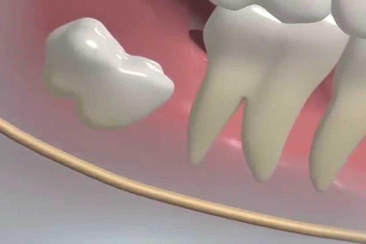 →  Dente siso nascendo: o que fazer para aliviar a dor?