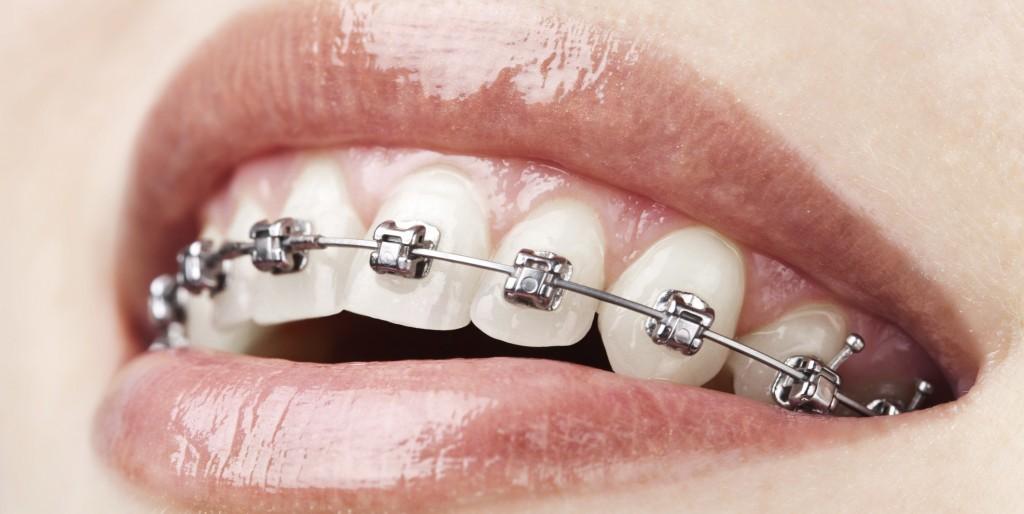 → Qual o melhor remédio para dor de dente inflamado?