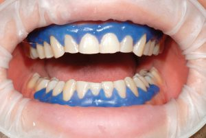 clareamento dental a laser afastador de lábio