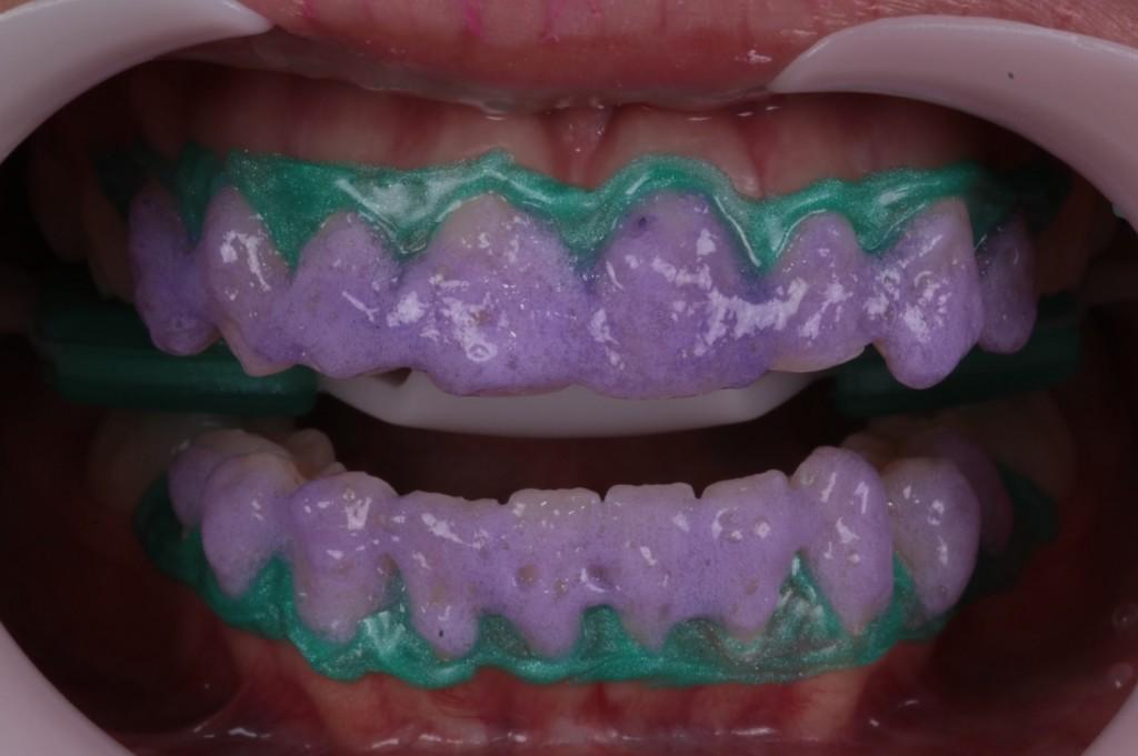 clareamento dental a laser 4