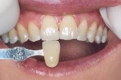 clareamento dental a laser 5