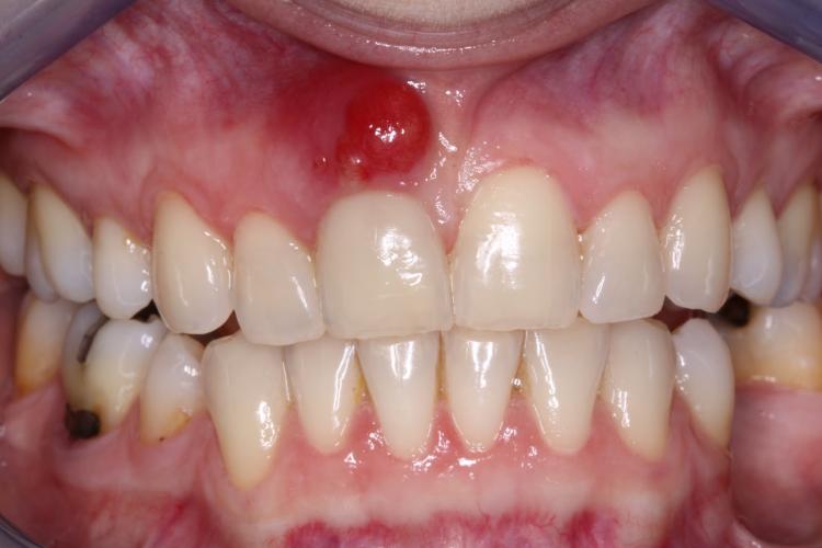 abscesso dentário fotos