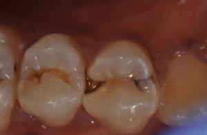 → Ponto preto no dente é cárie? O que fazer?