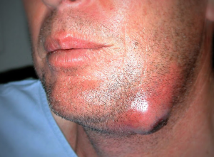 celulite dente infeccionado