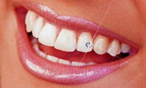 → Piercing na boca - por que você NÃO deve fazer com qualquer um